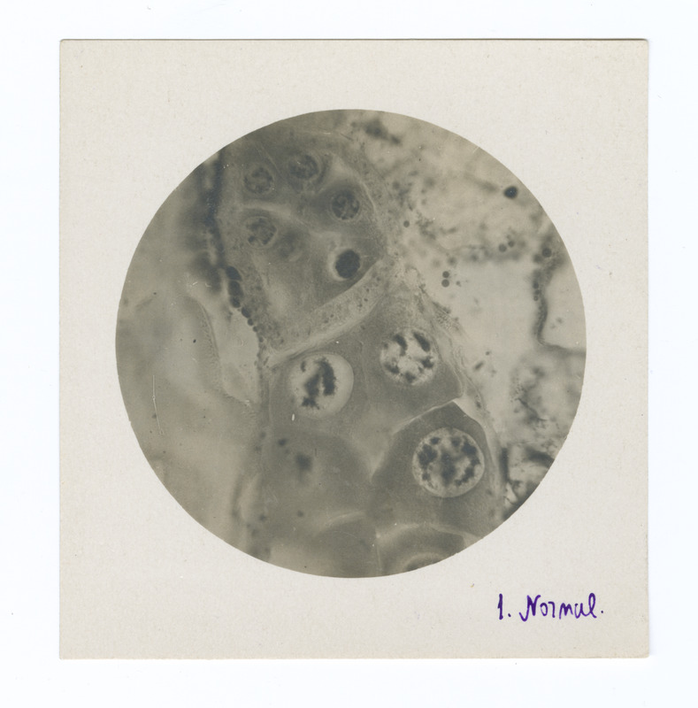 Images of X-rayed cells from correspondence with N. Woskressensky